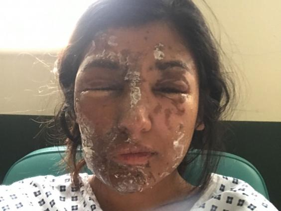 resham-khan-acid-attack